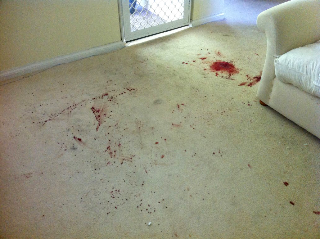 Blood on carpet stain removal floor matttroy - Remove carpet stains ...